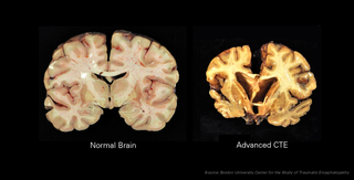 Slides of CTE Damaged Brain Samples